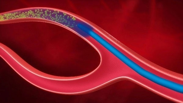 Guerbet's SeQure and DraKon Peripheral Microcatheters Cleared in Europe