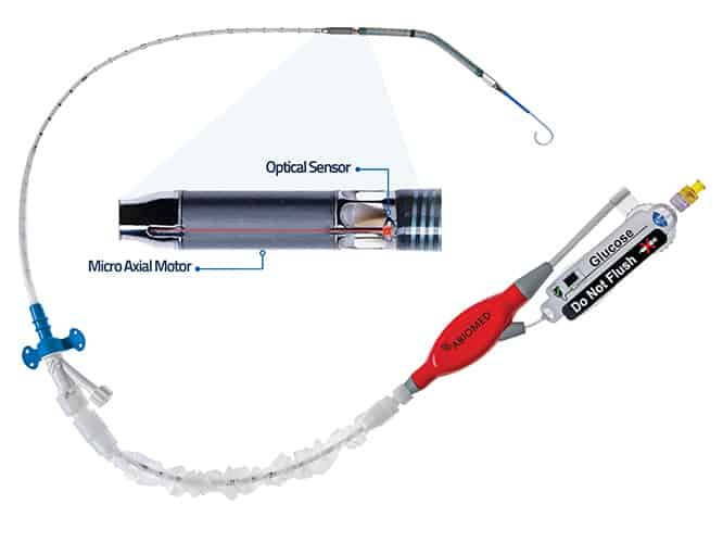 Impella CP with SmartAssist: A Newly FDA Approved Heart Pump with Optical Positioning Sensor