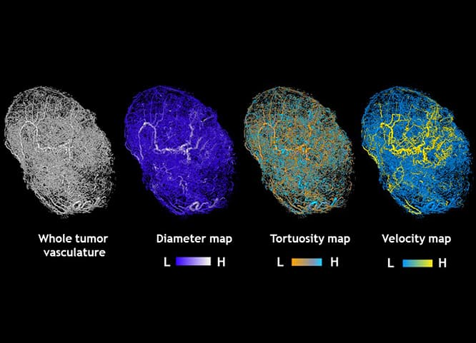 Technique Combines Tumor Scans with Math Algorithms to Create Comples Tumor Models