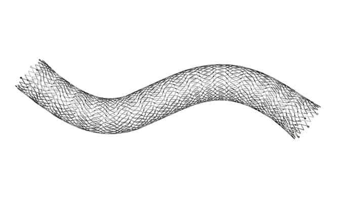 High Strength VICI Venous Stent Approved by FDA to Treat Iliofemoral Obstructive Disease