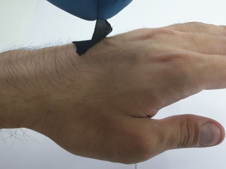 Octopus-Inspired Wearable Biosensor Sticks to Wet and Dry Skin