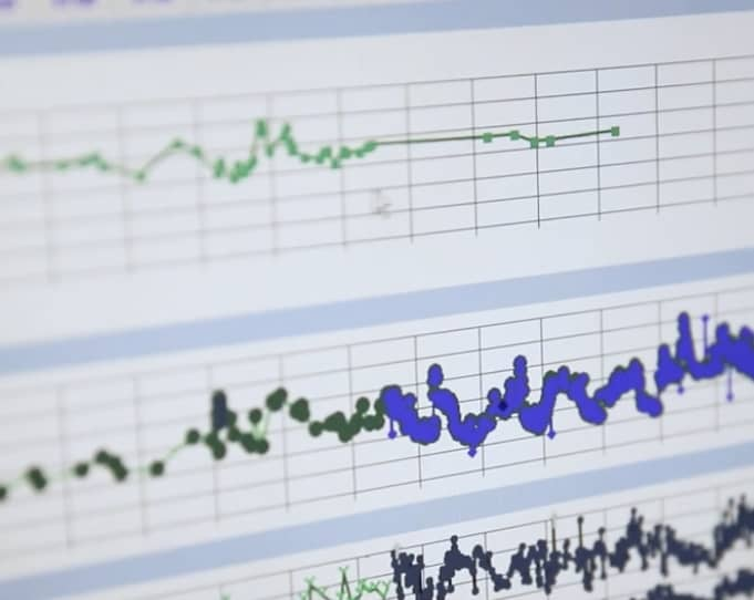 Algorithm Uses Individual Medical History to Predict Patient's Chance of Survival in ICU