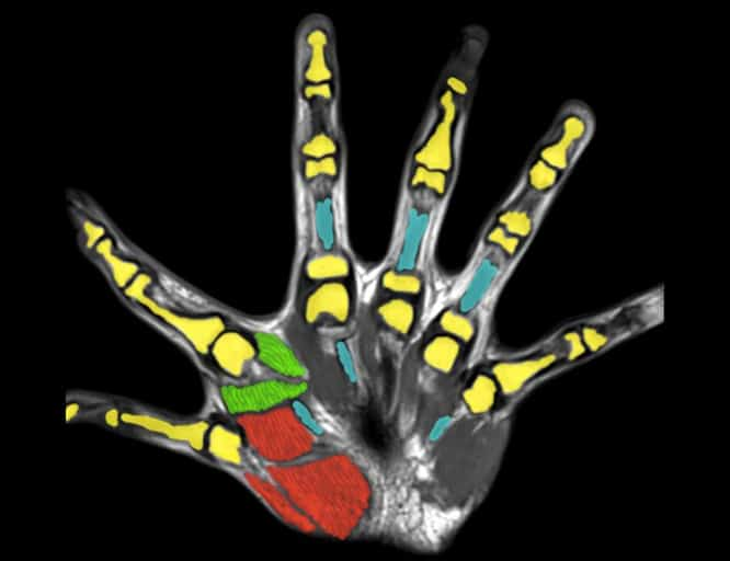 Study of People with Extra Fingers Points to New Approaches for Development of Prosthetic Devices
