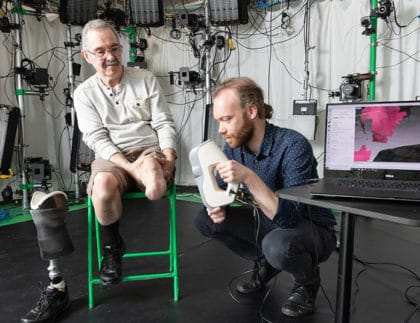Tailor-Made Prosthetic Liners Can Help Amputees Walk More Comfortably