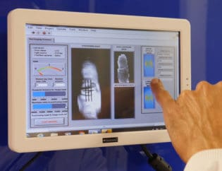 Infrared Imaging Diagnoses Rheumatoid Arthritis