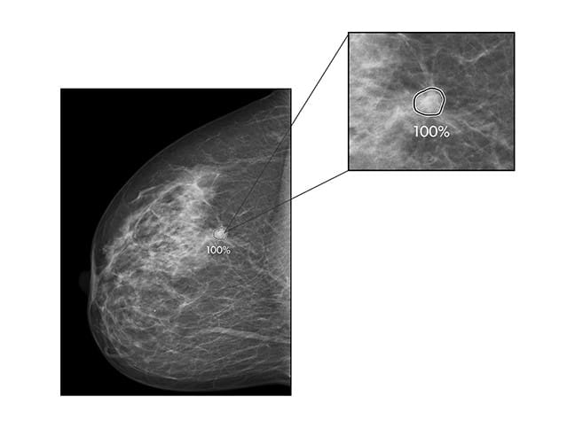 ProFound AI for 2D Mammography Cleared in Europe to Spot Potential Breast Tumors