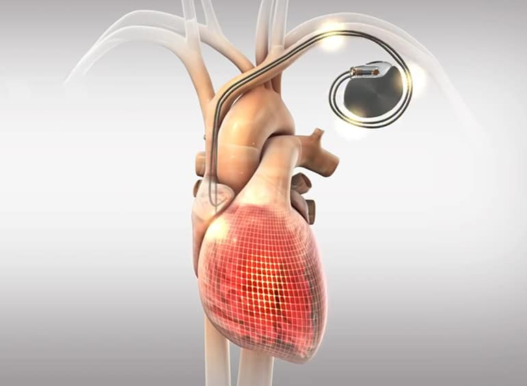Pacemaker-Like Implant Cleared in Europe to Lower Blood Pressure