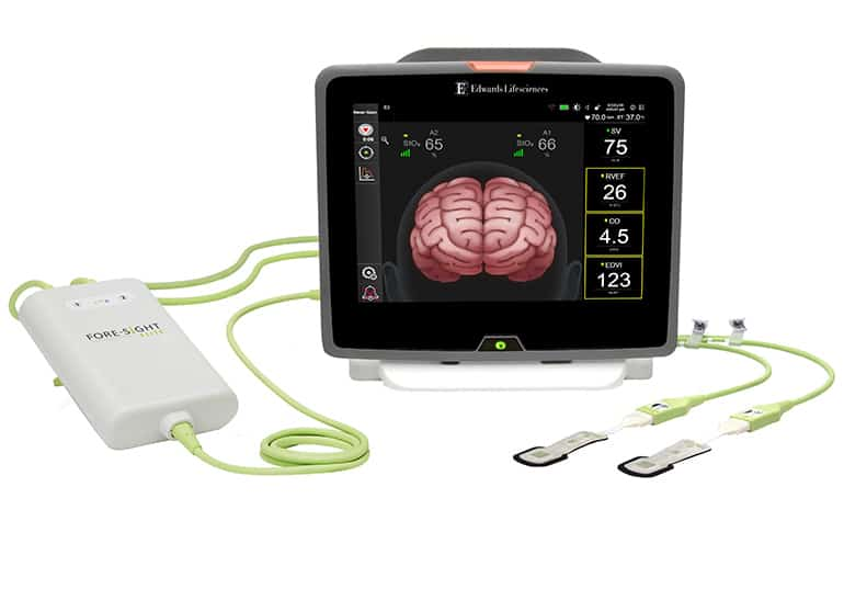 Edwards ForeSight Brain Oxygenation Sensors FDA Cleared to Pair with Hemosphere Monitor