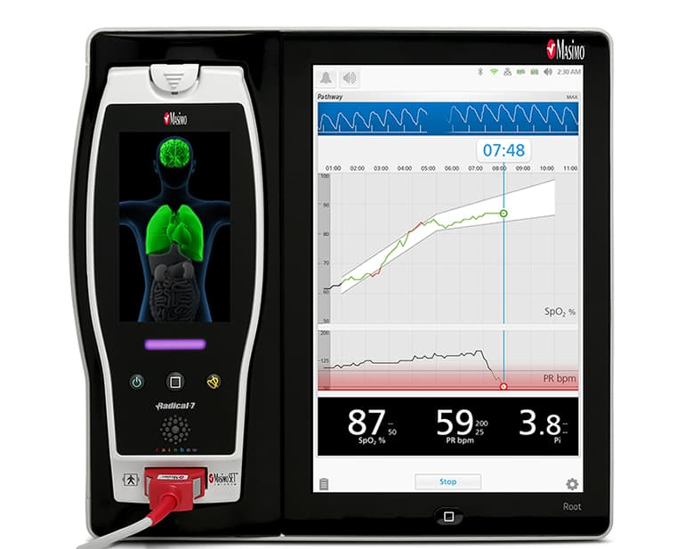 Masimo Unveils Pathway Newborn Oxygen Saturation Visualizer
