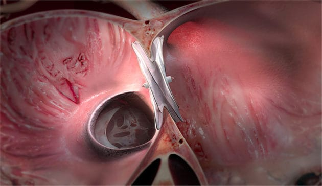 Gore CARDIOFORM ASD Cleared in Europe for Atrial Septal Defects