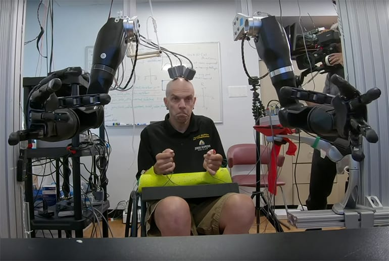World First: Man Controls Two Powered Prosthetic Arms with His Mind