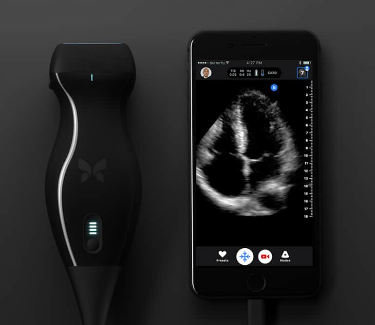 Butterfly Network Expands Applications for Smartphone-Connected Ultrasound: Interview