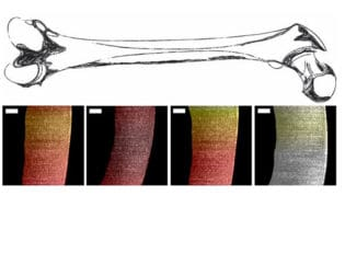 Optical Coherence Tomography Finally Used to Measure Cartilage Health