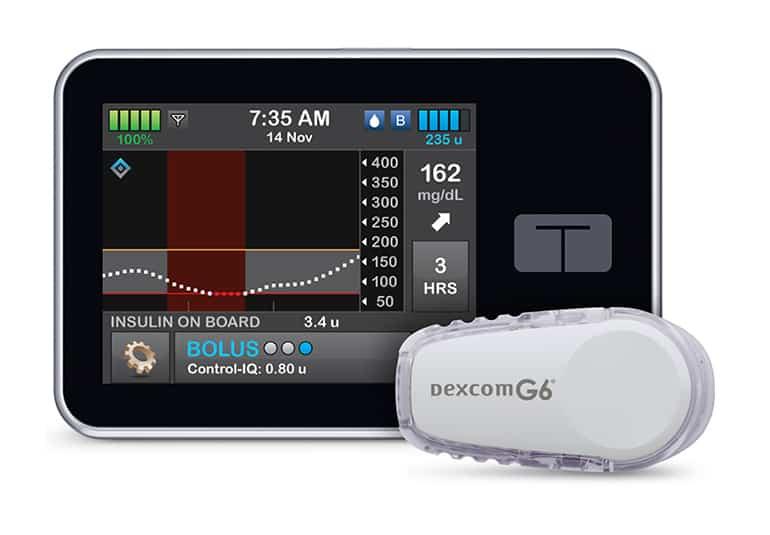 Tandem's t:slim X2 Insulin Pump Now with Control-IQ Auto Dosing