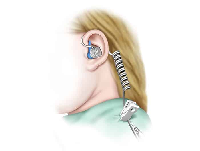 TULA System for Awake Ear Tube Placement FDA Approved