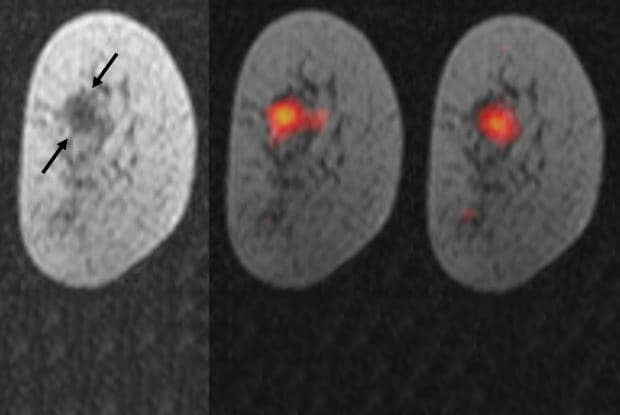 Magnetized Particles Show Live Metabolic Activity of Breast Cancer