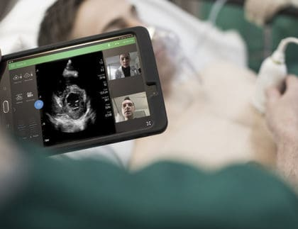 Philips Ultrasounds Cleared in U.S. to Manage COVID Complications