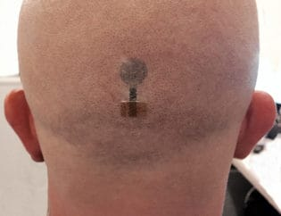 Tattoo Electrodes Make Long Term EEG Brain Monitoring Possible