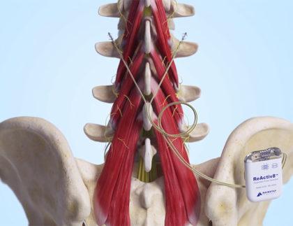 ReActiv8 Neurostimulator Treats Cause of Back Pain, Now FDA Approved
